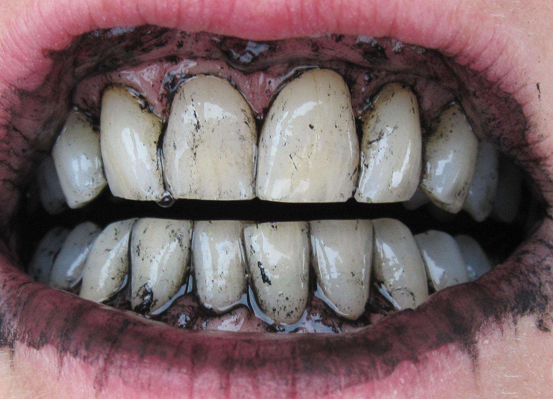 Способи відбілювання зубів 8c0202c675da2
