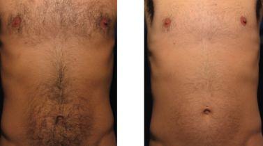 Фото до и после эпиляции
