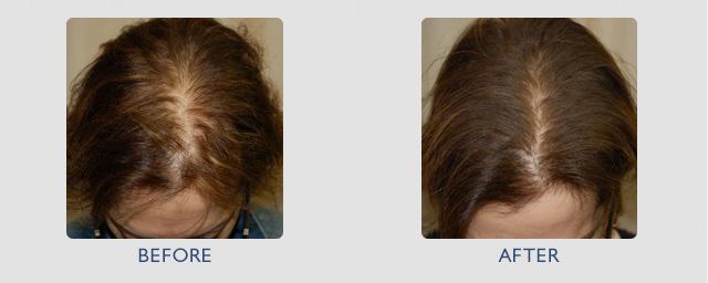 мезотерапия волосистой части головы фото