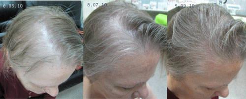 мезотерапия кожи головы до и после
