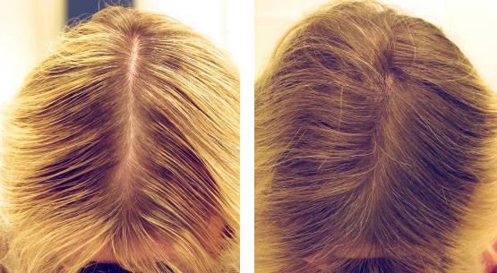 мезотерапия для волос фото до и после