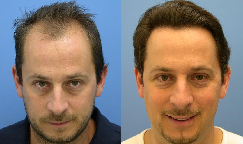 Трансплантация волос фото до и после