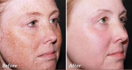 Фотоотерапия при пигментации фото до и после