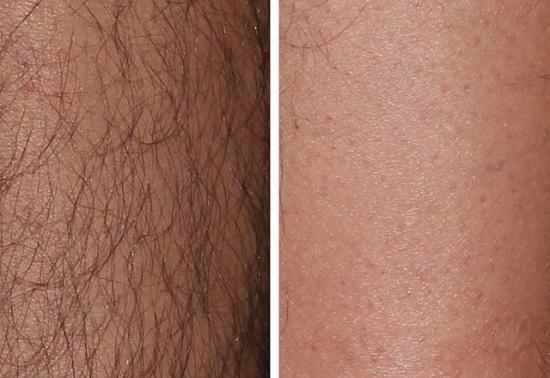 AFT-эпиляция: фото до и после