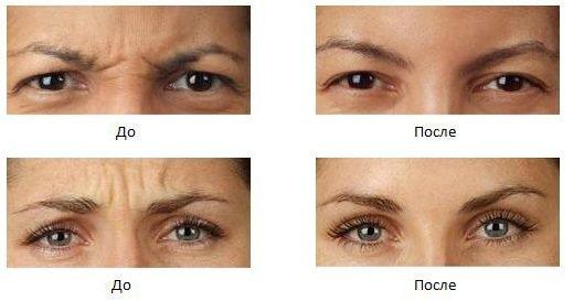 Як боротися з мімічними зморшками навколо очей? Хто схильний до ризику? Косметика і апаратні методи позбавлення
