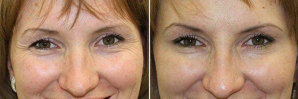 Кетамін від зморшок навколо очей. Користь і принцип дії. способи застосування