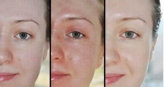 Глибокий хімічний пілінг обличчя в домашніх умовах. Види процедури і особливості її проведення