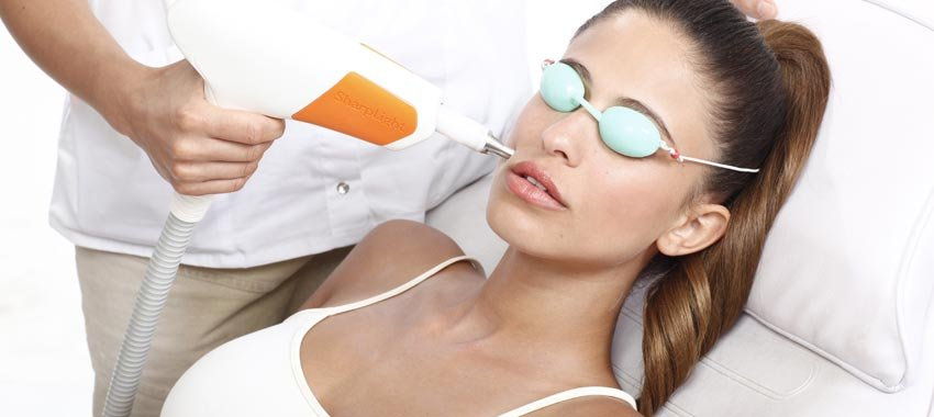 Як відбувається глибокий лазерний пілінг обличчя? Переваги і показання для проведення процедури