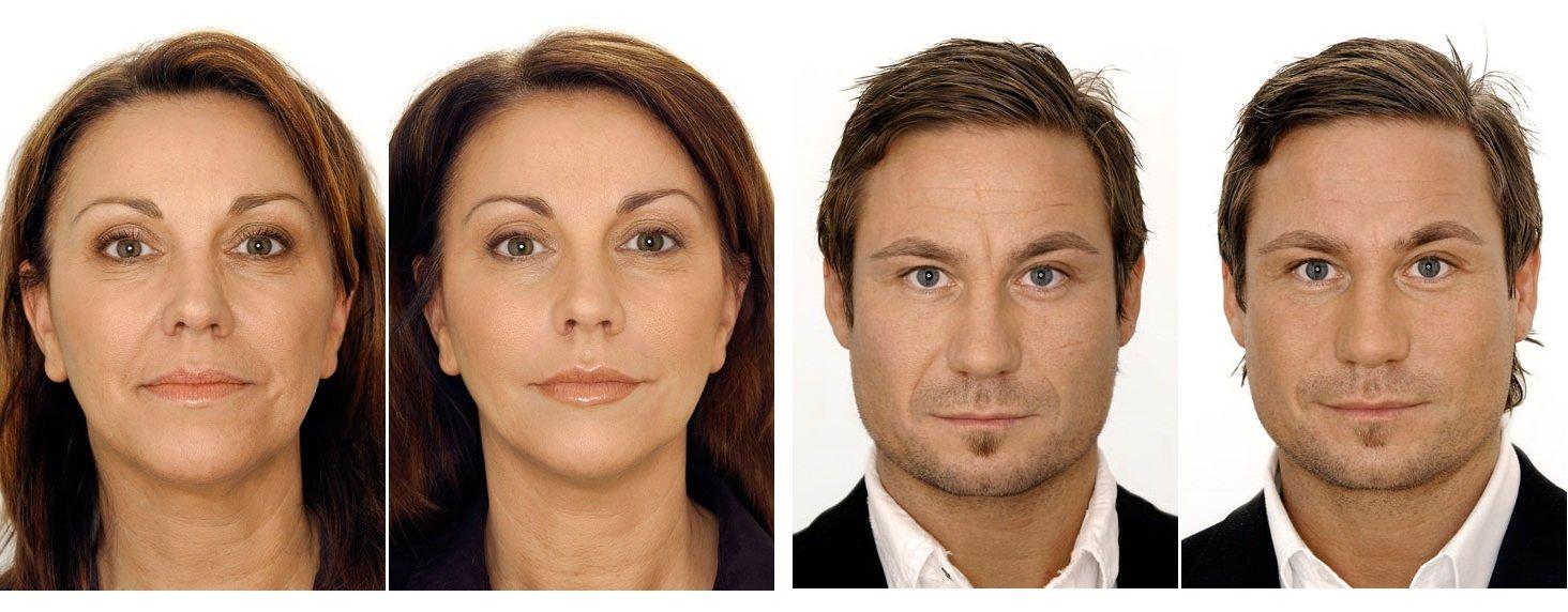 Різновиди ліфтингу шкіри обличчя. Переваги процедури і особливості проведення в домашніх умовах
