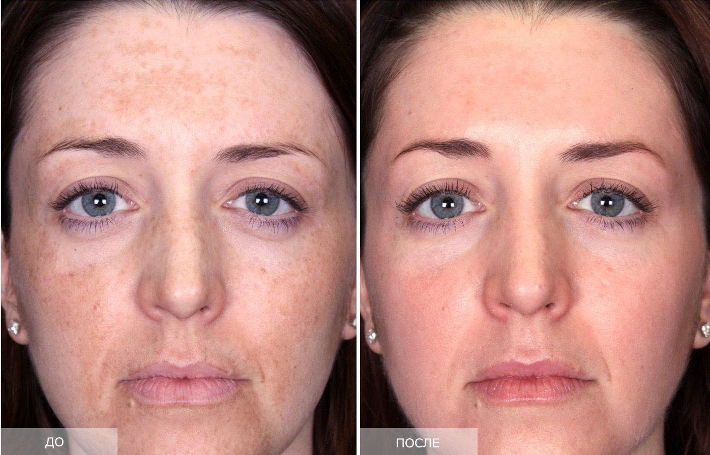 Застосування цинкової мазі від зморшок на обличчі в косметології. Переваги та протипоказання використання крему