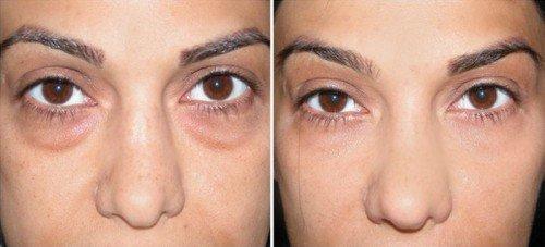 Дія гепариновой мазі від зморшок на обличчі. Переваги та протипоказання до застосування засоби