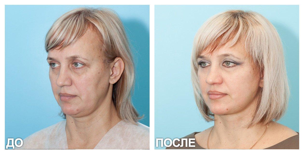 Підтяжка обличчя за допомогою ультразвукового СМАС ліфтингу. Процес проведення процедури. Переваги та протипоказання до застосування