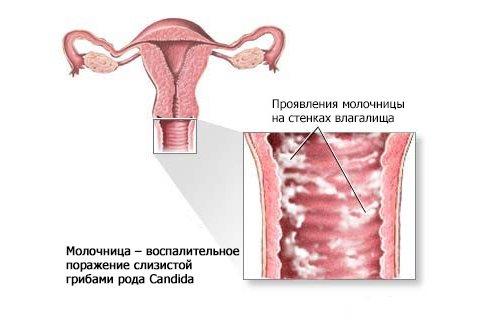 Чим небезпечна молочниця при вагітності? Причини виникнення захворювання. Особливості медикаментозного лікування і використання народних коштів