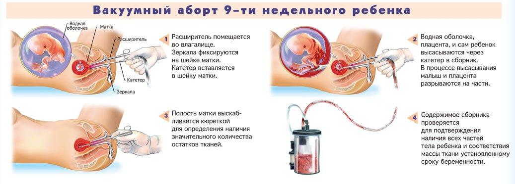 Переривання вагітності на ранніх термінах. Опис медикаментозного і народного способів аборту. Протипоказання і ускладнення після процедури