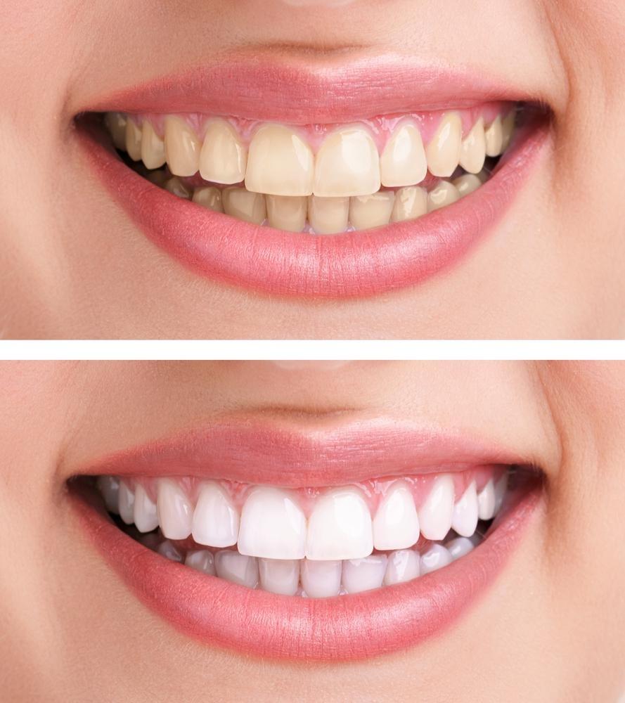 Лазерне відбілювання зубів. Переваги та протипоказання до застосування. Догляд за зубами після процедури