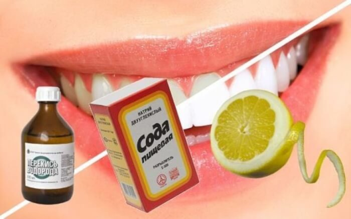 Відбілювання зубів в домашніх умовах. Причини зміни кольору емалі і засоби боротьби з ним