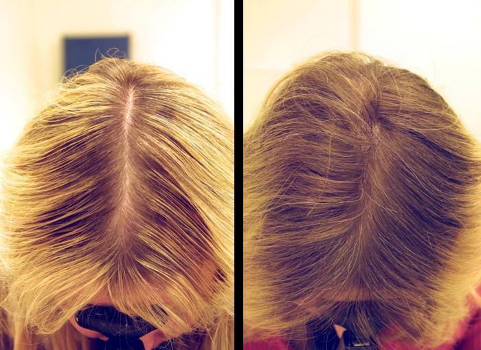 Маска для волосся з червоним перцем. Користь і правила застосування засобу. Рецепти приготування складів