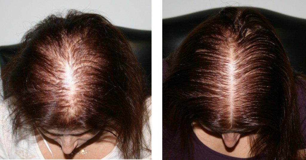 Ефективні засоби від випадіння волосся. Причини виникнення проблеми. Аптечні і народні способи боротьби з облисінням