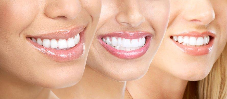 Ефективні способи відбілювання зубів. Стоматологічні і народні методи освітлення емалі. Протипоказання до проведення процедур