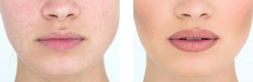 Види перманентного макіяжу губ. Особливості виконання процедур. Специфіка видалення татуажу