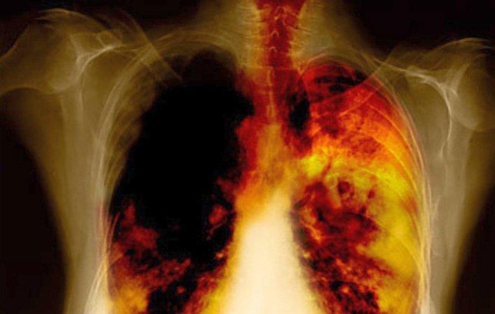 Як відновити легкі після куріння? Наслідки відмови від шкідливої звички. Методи очищення органів дихання