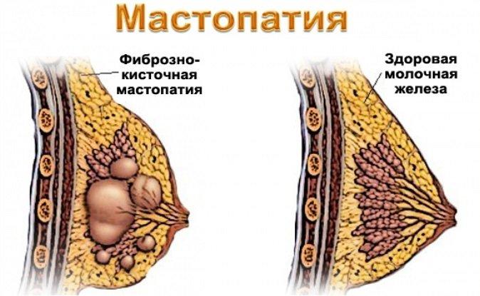 Як лікувати мастопатію народними засобами? Показання до проведення терапії. Рецепти приготування ефективних відварів