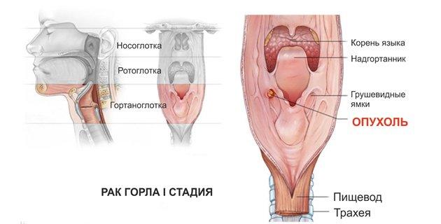 Як виглядає рак горла? Симптоми і причини захворювання. Методи лікування і діагностика патології