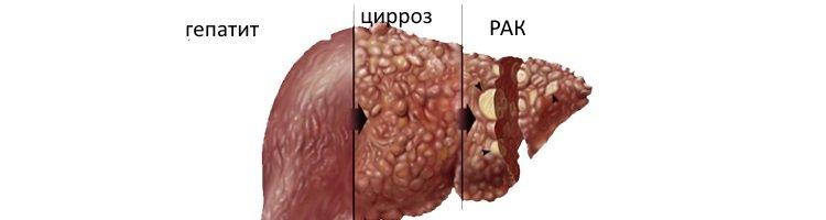 Як проявляється рак печінки? Симптоми захворювання і причини його виникнення. Діагностика онкології на ранніх стадіях