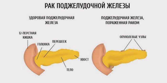 Які симптоми при раку підшлункової залози? Особливості протікання хвороби. Причини виникнення захворювання і його ускладнення