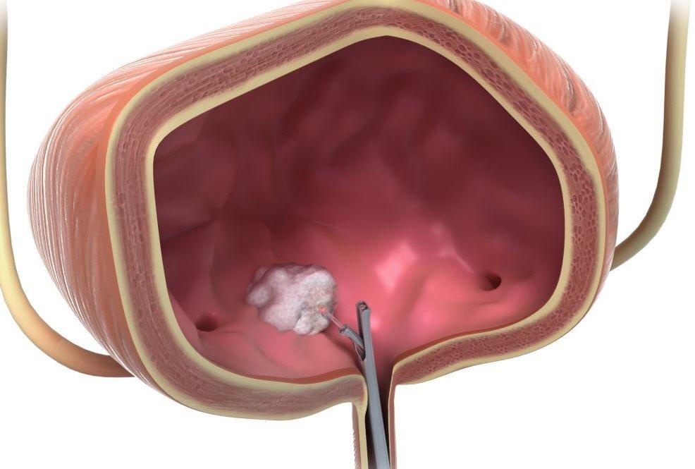 Рак сечового міхура. Причини виникнення і симптоми захворювання. Діагностика і лікування онкології