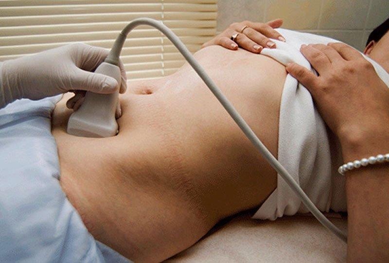 Рак сечового міхура у жінок. Симптоми і причини виникнення захворювання. Стадії розвитку патології і методи її лікування