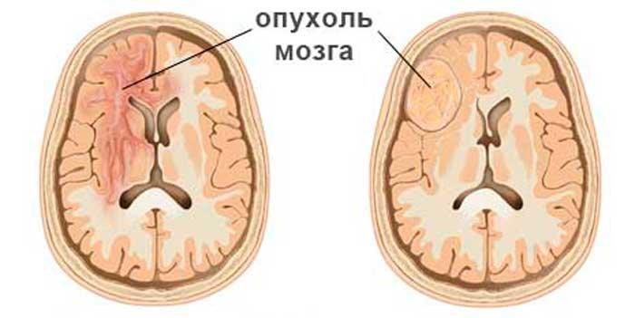 Як проявляється рак головного мозку? Перші ознаки захворювання. Різновиди симптомів на ранніх і пізніх стадіях розвитку онкології