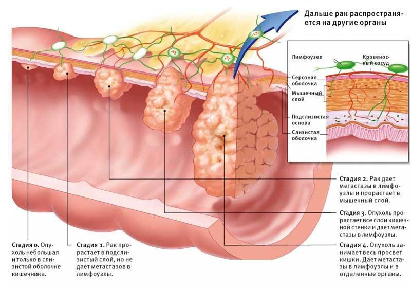 Процес розвитку раку кишечника. Симптоми і причини захворювання. Діагностика і лікування онкології. профілактика недуги