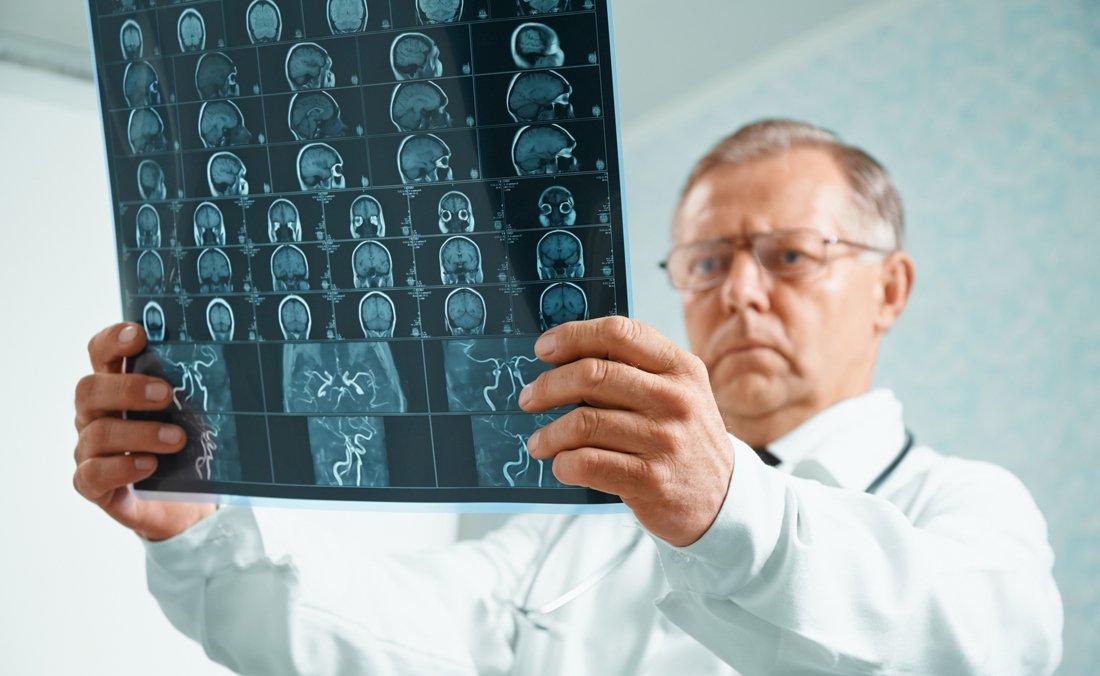 Які симптоми при раку мозку? Ознаки та причини захворювання. Методи лікування патологій головного, спинного та кісткового органів людини
