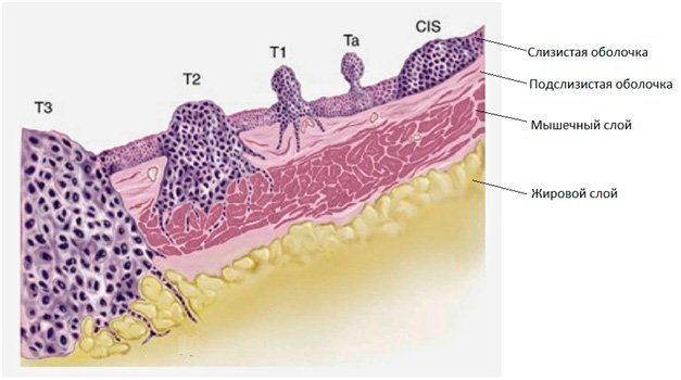 Рак сечового міхура у чоловіків. Симптоми і причини захворювання. Стадії розвитку і види патології. Методи діагностики та лікування недуги