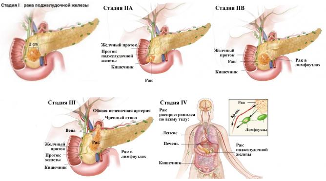Скільки можна прожити з раком підшлункової залози? Симптоми і причини захворювання. Діагностика і методи лікування онкології