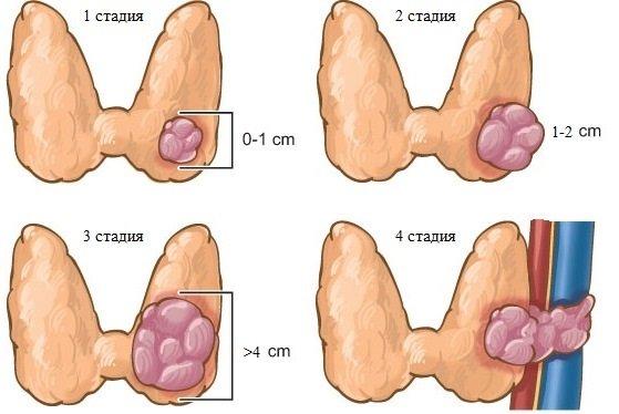 Симптоми і причини раку щитовидної залози. Стадії патології і їх діагностика. Традиційні та народні методи лікування