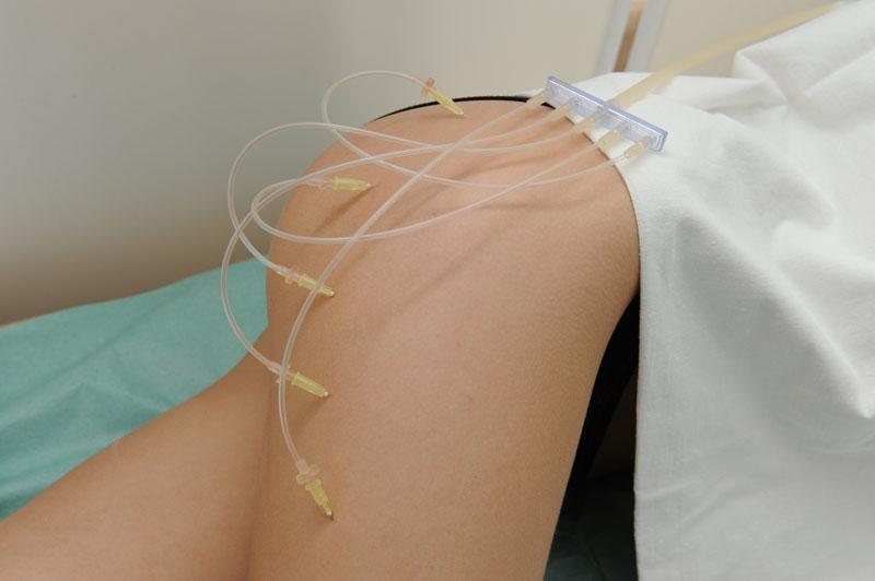 Photo of Озонотерапія при целюліті