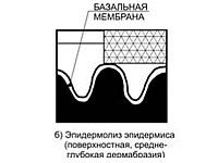 Photo of Мікрокристалічна дермабразия (механічний пілінг)