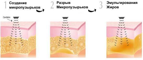 Photo of Ультразвукова терапія та кавітація при целюліті