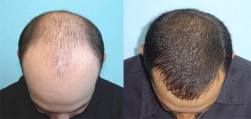 Photo of пересадка волосся