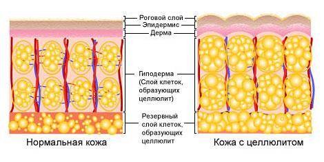 Photo of Лікування жирної і сухої себореї на обличчі: медикаментозні і народні засоби