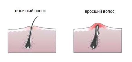 Photo of Врослі волосся після епіляції: причини, симптоми і методи видалення