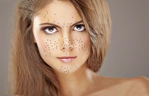 Photo of Як позбутися чорних крапок на обличчі: аптечні і народні засоби, салонні процедури