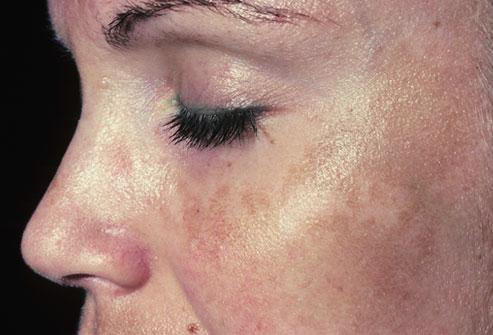 Photo of Чому веснянки яскравіше: причини появи пігментних плям на обличчі при вагітності
