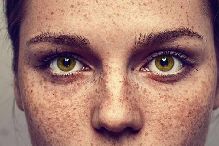 Photo of Причини і лікування пігментних плям на обличчі