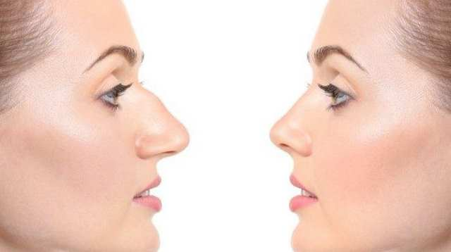Photo of Ринопластика носа: особенности процедуры