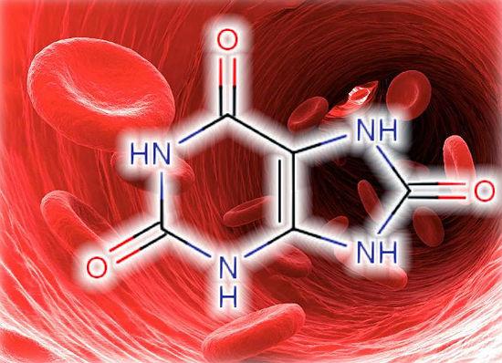 Photo of Як вивести сечову кислоту з організму?