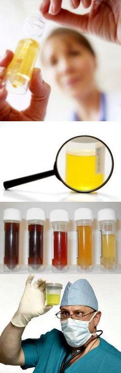 Лейкоциты в моче – откуда они появляются?