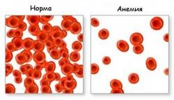 Анемия, причины и симптомы, диагностика и лечение